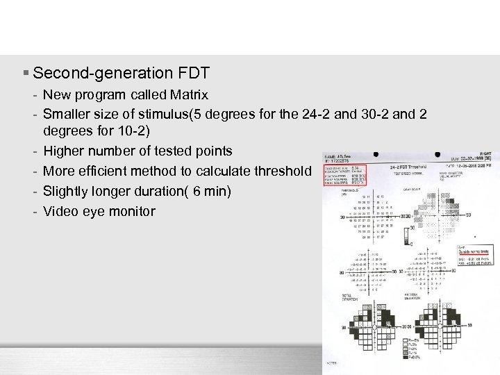 § Second-generation FDT - New program called Matrix - Smaller size of stimulus(5 degrees