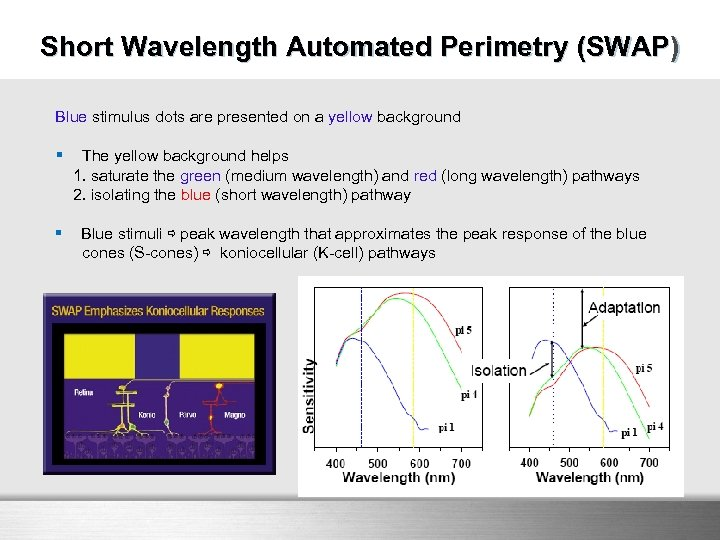 SWAP Short Wavelength Automated Perimetry (SWAP) Blue stimulus dots are presented on a yellow