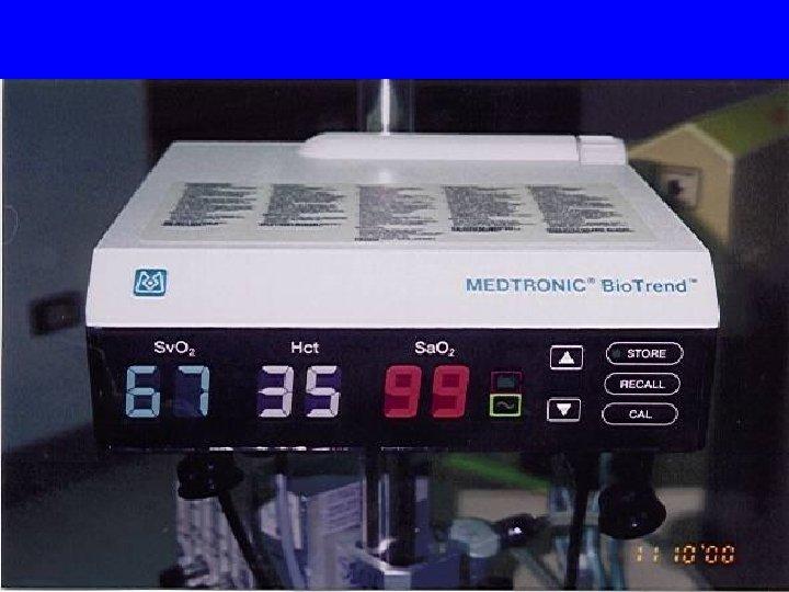 MX-2 monitor