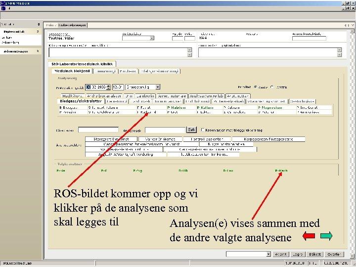 ROS-bildet kommer opp og vi klikker på de analysene som skal legges til Analysen(e)