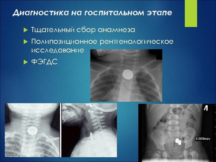 Диагностика на госпитальном этапе Тщательный сбор анамнеза Полипозиционное рентгенологическое исследование ФЭГДС