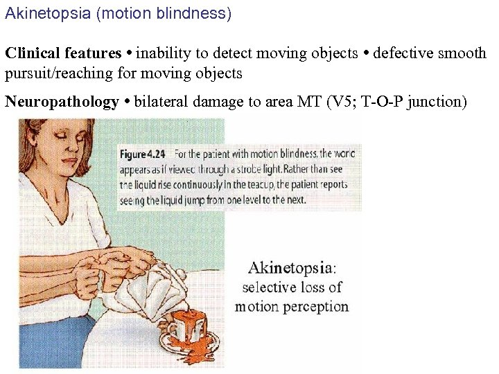 Akinetopsia (motion blindness) Clinical features • inability to detect moving objects • defective smooth