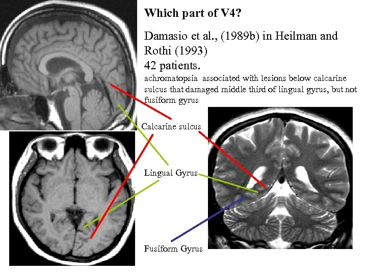 Which part of V 4? Damasio et al. , (1989 b) in Heilman and
