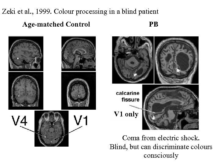 Zeki et al. , 1999. Colour processing in a blind patient Age-matched Control PB