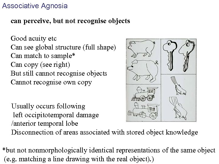Associative Agnosia can perceive, but not recognise objects Good acuity etc Can see global