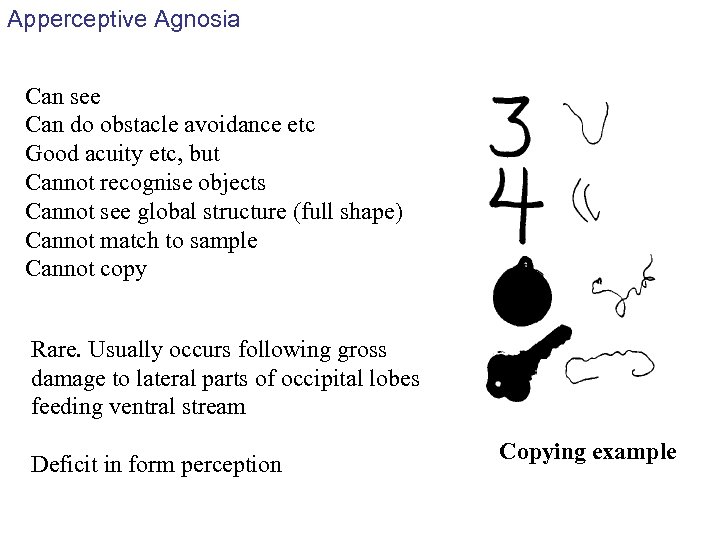 Apperceptive Agnosia Can see Can do obstacle avoidance etc Good acuity etc, but Cannot