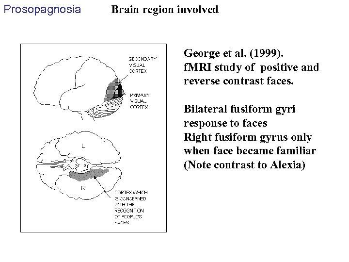 Prosopagnosia Brain region involved George et al. (1999). f. MRI study of positive and