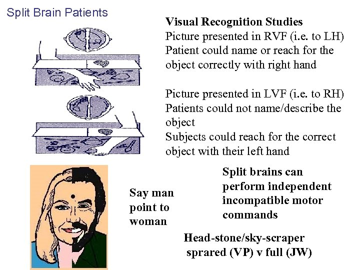 Split Brain Patients Visual Recognition Studies Picture presented in RVF (i. e. to LH)