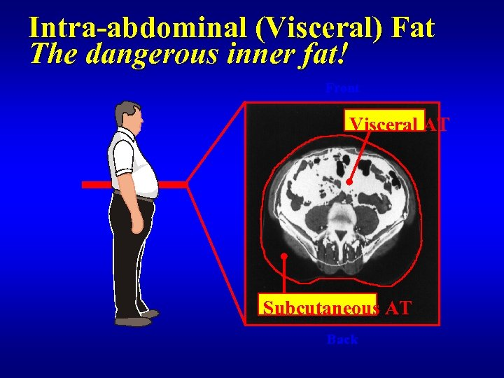 Intra-abdominal (Visceral) Fat The dangerous inner fat! Front Visceral AT Subcutaneous AT Back