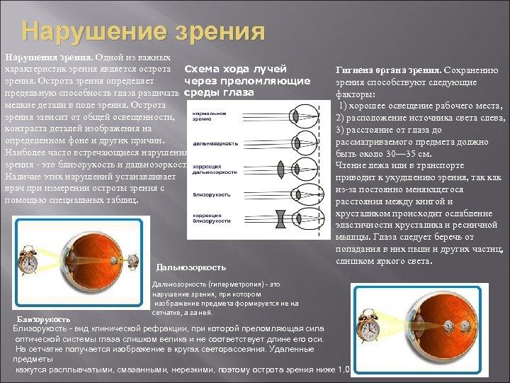 Нарушение зрения Нарушения зрения. Одной из важных характеристик зрения является острота Схема хода лучей