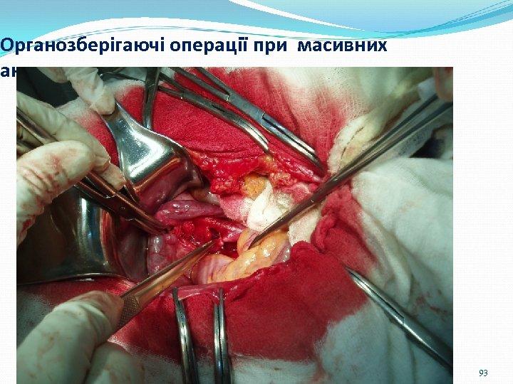 Органозберігаючі операції при масивних акушерських кровотечах 93