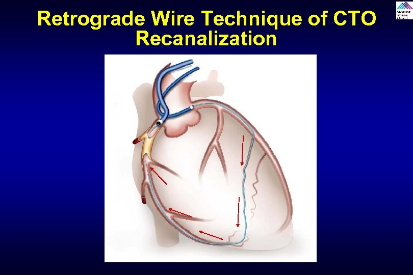 Retrograde Wire Technique of CTO Recanalization