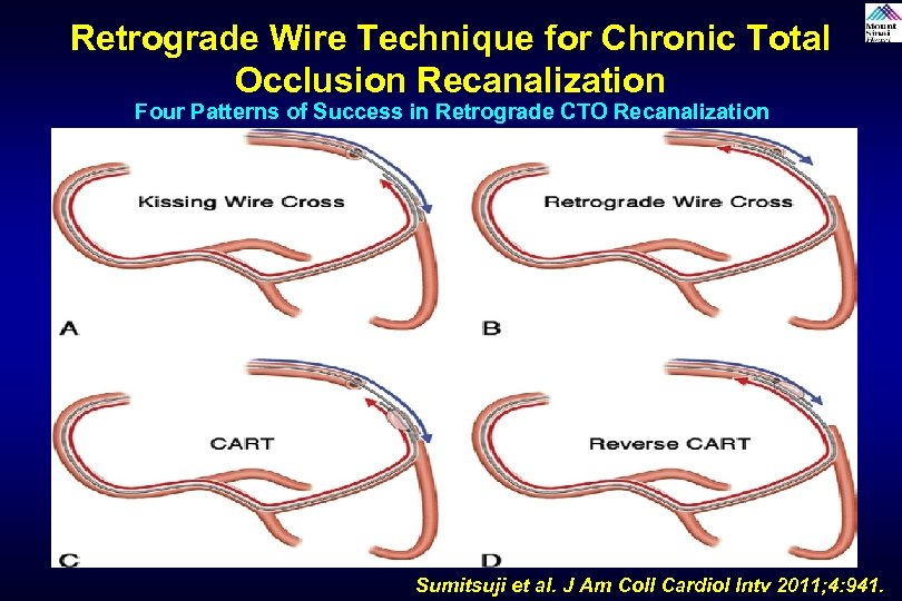 Retrograde Wire Technique for Chronic Total Occlusion Recanalization Four Patterns of Success in Retrograde