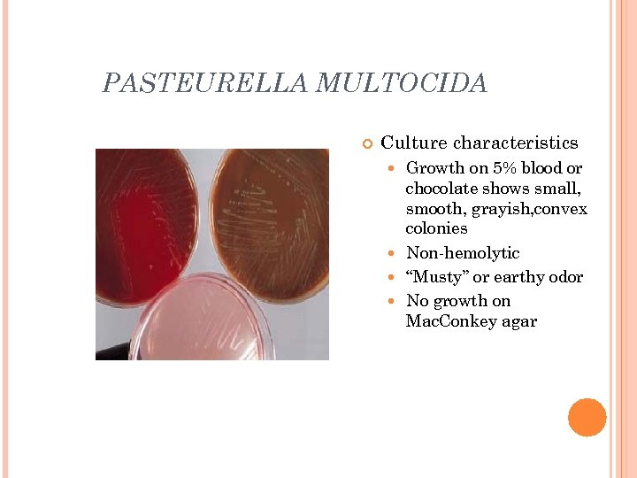 PASTEURELLA MULTOCIDA Culture characteristics Growth on 5% blood or chocolate shows small, smooth, grayish,