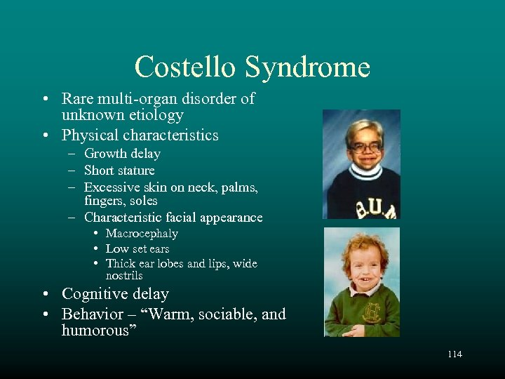Costello Syndrome • Rare multi-organ disorder of unknown etiology • Physical characteristics – Growth