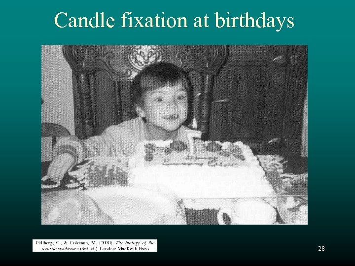 Candle fixation at birthdays 28