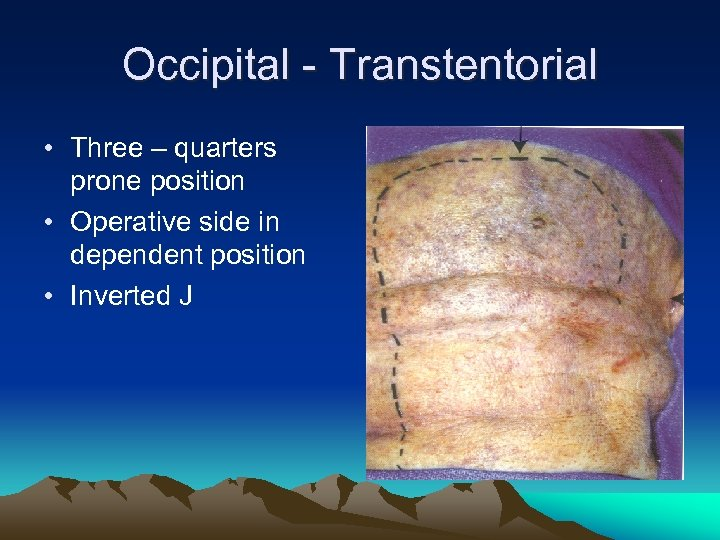 Occipital - Transtentorial • Three – quarters prone position • Operative side in dependent