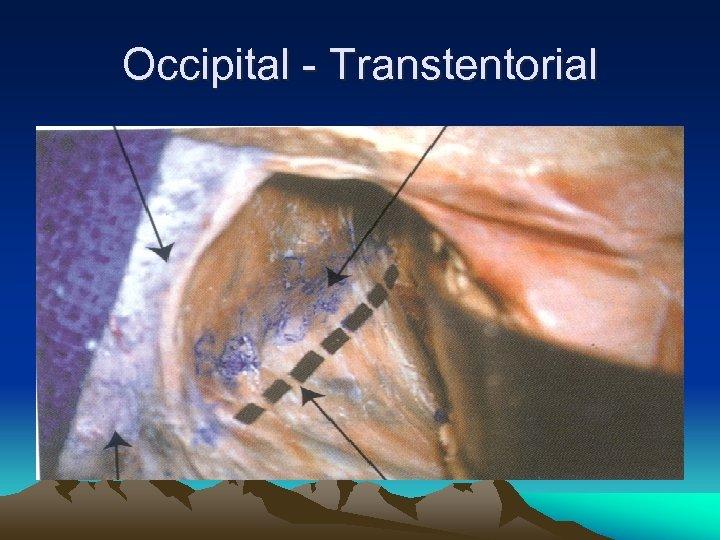 Occipital - Transtentorial