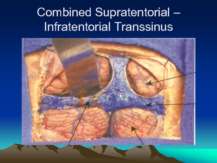 Combined Supratentorial – Infratentorial Transsinus