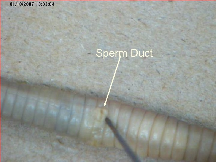 Sperm Duct