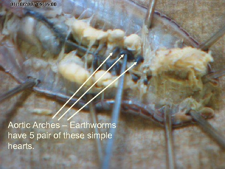 Aortic Arches – Earthworms have 5 pair of these simple hearts.