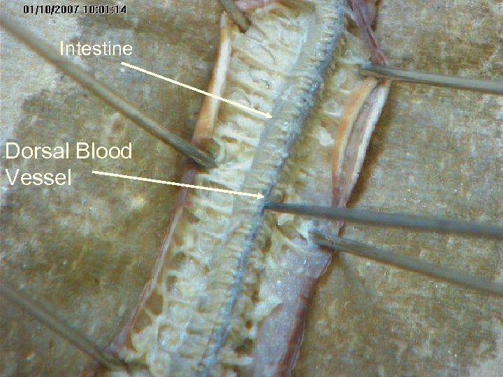 Intestine Dorsal Blood Vessel