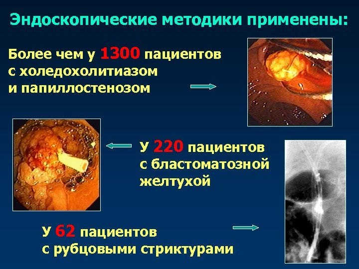 Эндоскопические методики применены: Более чем у 1300 пациентов с холедохолитиазом и папиллостенозом У 220
