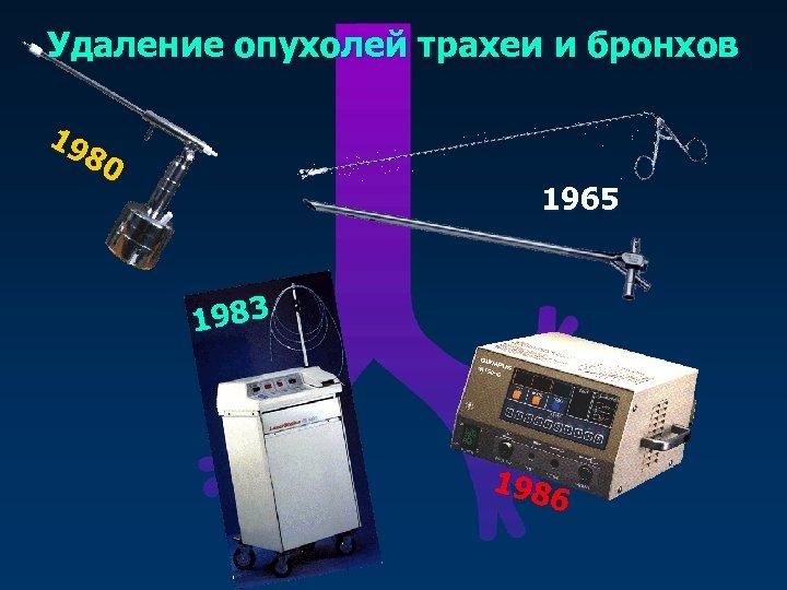 Удаление опухолей трахеи и бронхов 19 80 1965 1983 198 6