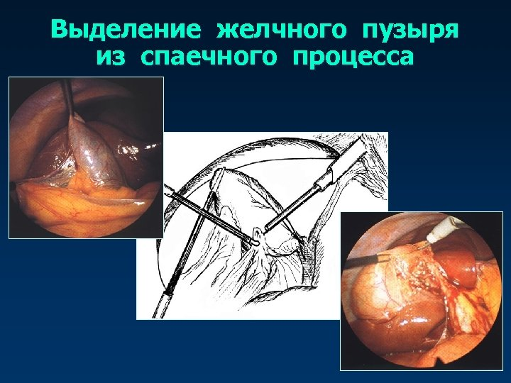 Выделение желчного пузыря из спаечного процесса