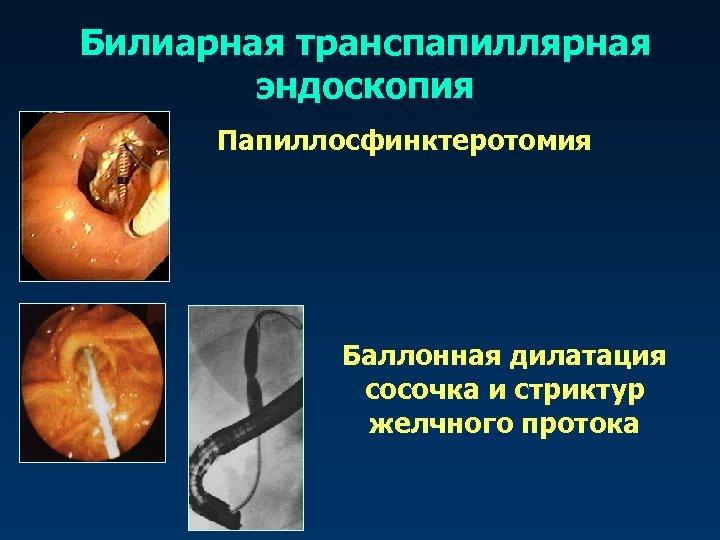 Билиарная транспапиллярная эндоскопия Папиллосфинктеротомия Баллонная дилатация сосочка и стриктур желчного протока