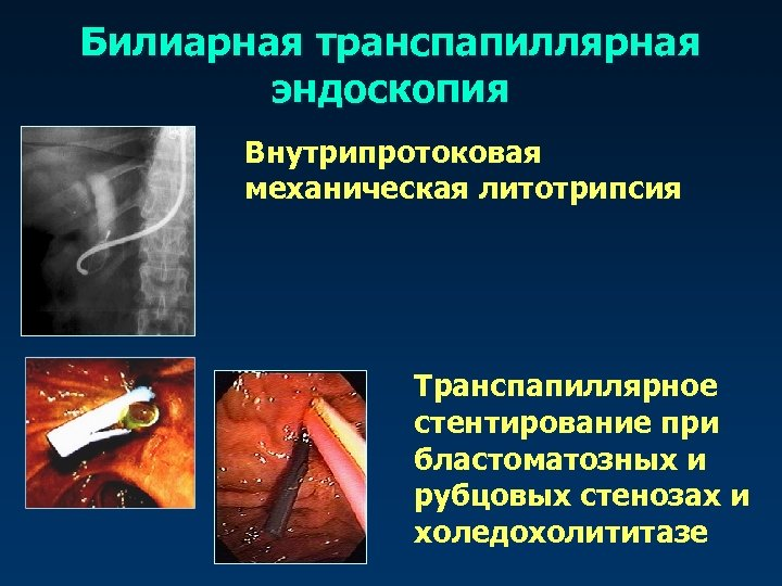 Билиарная транспапиллярная эндоскопия Внутрипротоковая механическая литотрипсия Транспапиллярное стентирование при бластоматозных и рубцовых стенозах и