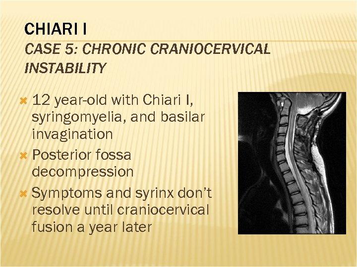 CHIARI I CASE 5: CHRONIC CRANIOCERVICAL INSTABILITY 12 year-old with Chiari I, syringomyelia, and