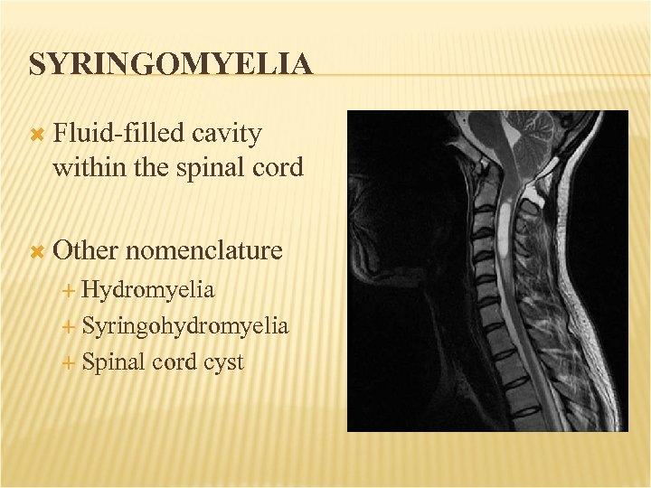 SYRINGOMYELIA Fluid-filled cavity within the spinal cord Other nomenclature Hydromyelia Syringohydromyelia Spinal cord cyst