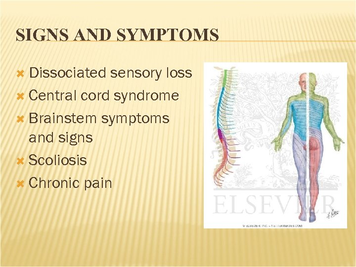 SIGNS AND SYMPTOMS Dissociated sensory loss Central cord syndrome Brainstem symptoms and signs Scoliosis