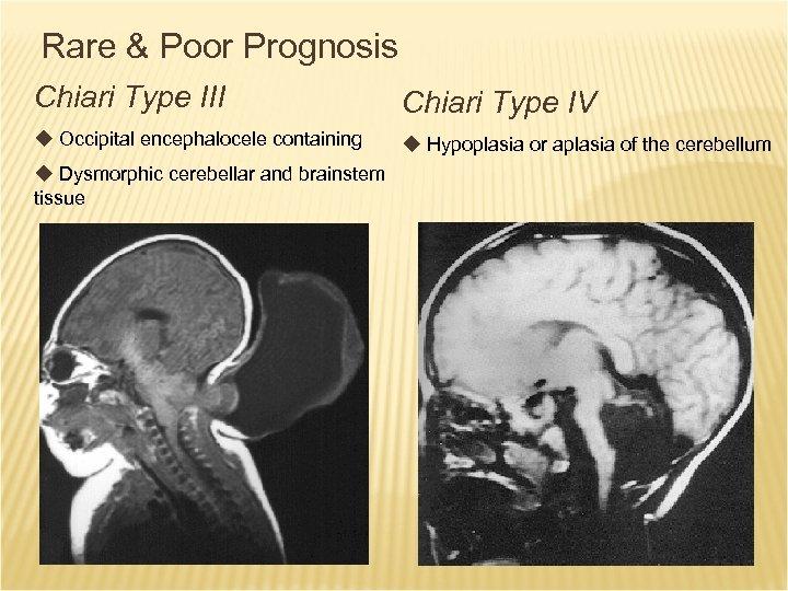 Rare & Poor Prognosis Chiari Type III Chiari Type IV u Occipital encephalocele containing