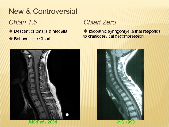 New & Controversial Chiari 1. 5 Chiari Zero u Descent of tonsils & medulla