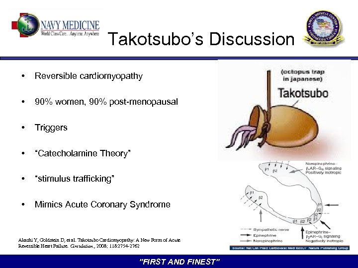 """Takotsubo's Discussion • Reversible cardiomyopathy • 90% women, 90% post-menopausal • Triggers • """"Catecholamine"""