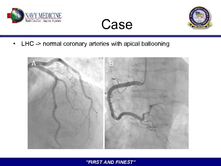 """Case • LHC -> normal coronary arteries with apical ballooning """"FIRST AND FINEST"""""""