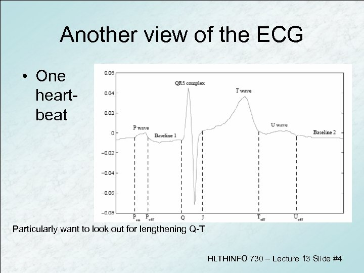 Another view of the ECG • One heartbeat Particularly want to look out for