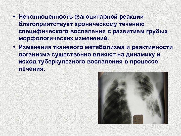 • Неполноценность фагоцитарной реакции благоприятствует хроническому течению специфического воспаления с развитием грубых морфологических