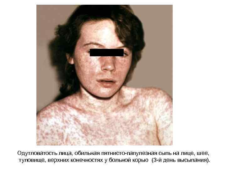 Одутловатость лица, обильная пятнисто-папулезная сыпь на лице, шее, туловище, верхних конечностях у больной корью