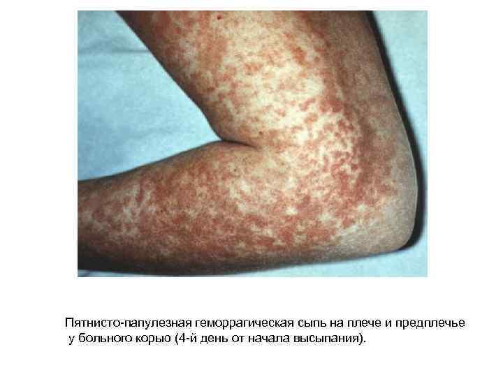 Пятнисто-папулезная геморрагическая сыпь на плече и предплечье у больного корью (4 -й день от
