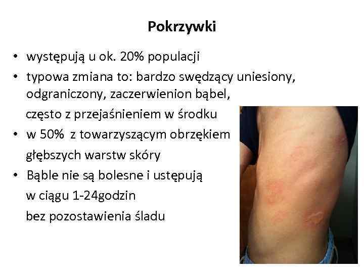 Pokrzywki • występują u ok. 20% populacji • typowa zmiana to: bardzo swędzący uniesiony,
