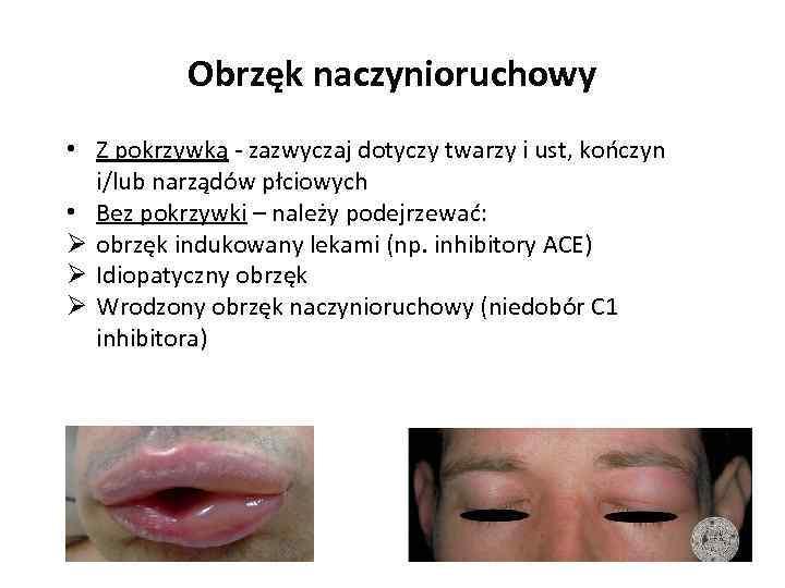 Obrzęk naczynioruchowy • Z pokrzywką - zazwyczaj dotyczy twarzy i ust, kończyn i/lub narządów