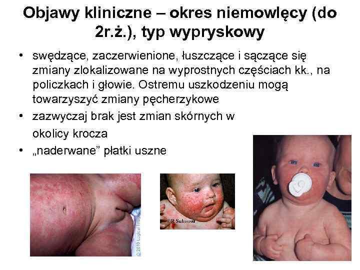 Objawy kliniczne – okres niemowlęcy (do 2 r. ż. ), typ wypryskowy • swędzące,