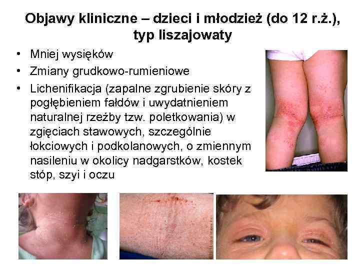 Objawy kliniczne – dzieci i młodzież (do 12 r. ż. ), typ liszajowaty •