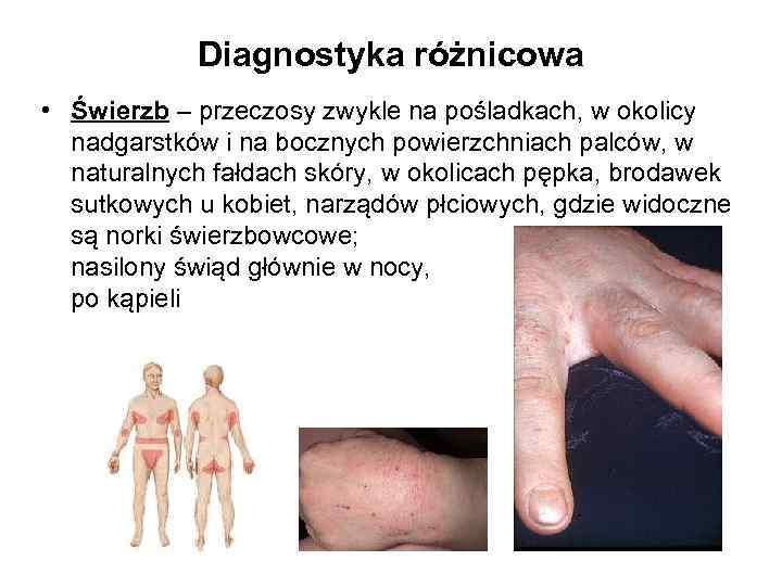 Diagnostyka różnicowa • Świerzb – przeczosy zwykle na pośladkach, w okolicy nadgarstków i na