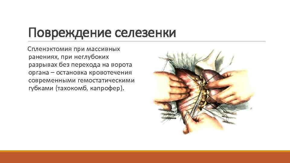 Повреждение селезенки Спленэктомия при массивных ранениях, при неглубоких разрывах без перехода на ворота органа