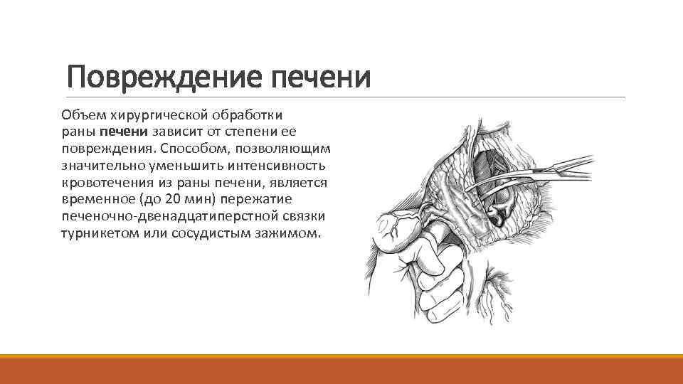 Повреждение печени Объем хирургической обработки раны печени зависит от степени ее повреждения. Способом, позволяющим