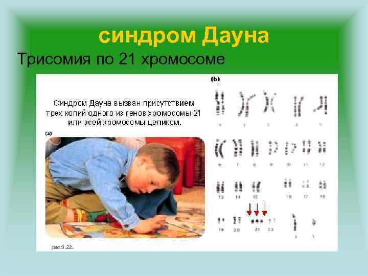 синдром Дауна Трисомия по 21 хромосоме